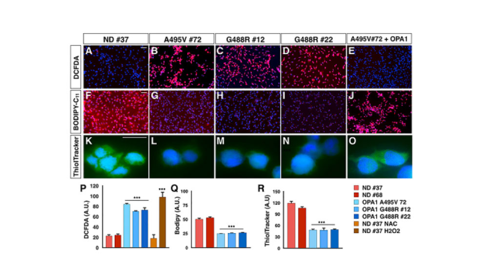 Pharmacological Inhibition of Necroptosis Protects from Dopaminergic Neuronal Cell Death in Parkinson's Disease Models