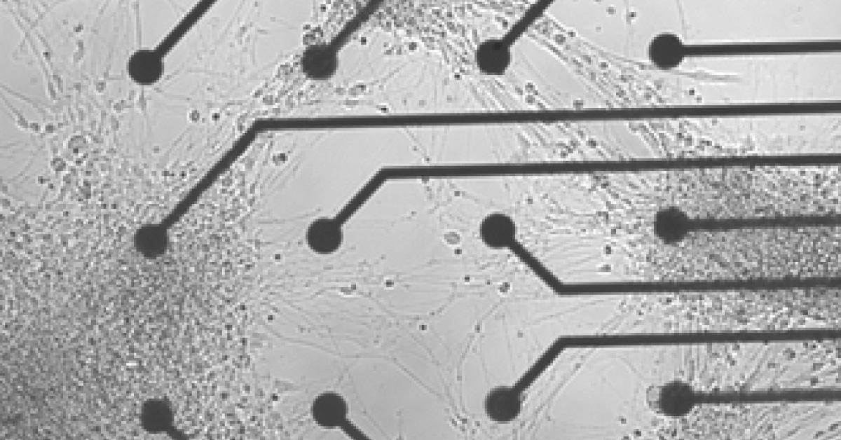 rete-neuronale